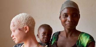 Tanzania: tra incantesimi e superstizioni è caccia agli albini