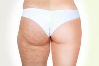 Cellulite: un inestetismo difficile da eliminare