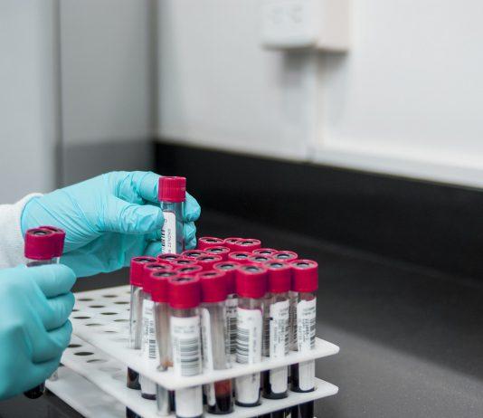Il gruppo sanguigno meno attaccato dal cancro